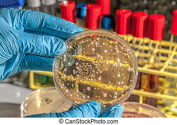 Fungi on agar plate - Genetically modified fungi on agar...