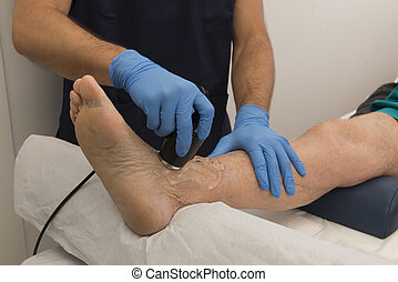 Physiotherapy and rehabilitation - Laser therapy on a foot