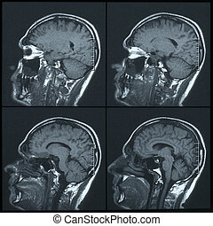 Magnetic resonance image MRI of the brain