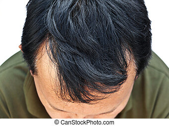 Human alopecia or hair loss problem and grizzly , shot from...