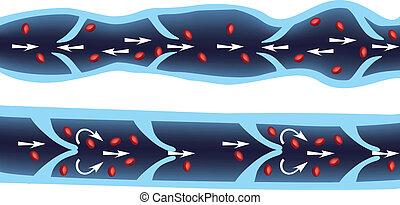 Sanguinamento di vene varicose di un esofago