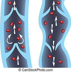 Veins - Normal vein and varicose vein illustration. Venous...