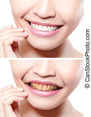 woman teeth before and after whitening asian beauty model