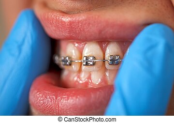 Dental braces - Close up of a dental braces at a dental...