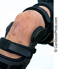 Knee Brace. - Knee brace for ACL football knee injury.