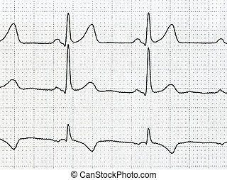 cardiogram - Detail of an electrocardiogram in paper
