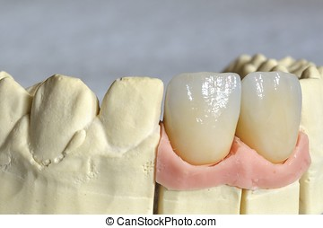Dental prosthesis, upper incisors stratified in lithium...