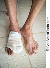 Diabetic ulcers at the foot - incise toe foot of diabetic...