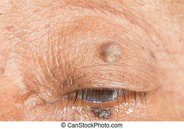 skin tag - close up of skin tag of left upper eyelid