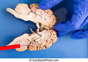 Longitudinal cross-section of a cow brain through the...
