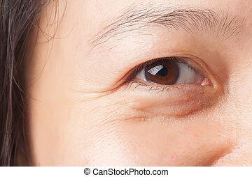 Wrinkles under eye - Woman wrinkles and under eye bag