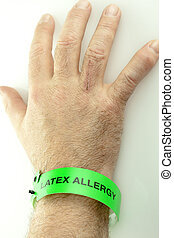 Latex Allergy Wrist Bracelet On Hand - A hand with a green...