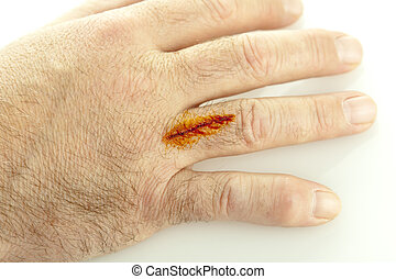 Cut On Hand - A cut on hand treated with iodine isolated on...