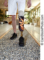 Male prosthesis wearer learning to walk in a speical parcour...