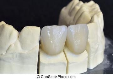 Upper incisors in zirconium - Upper incisors zirconium,...