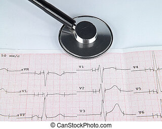 tonometer, pressure, ECG,