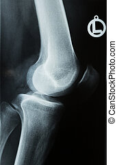 x-ray photo of a human knee