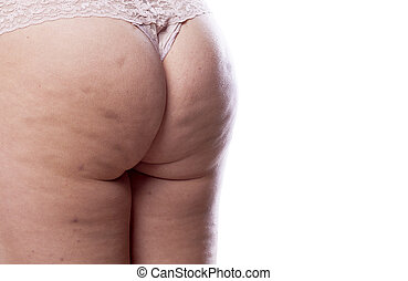 cellulite problem - female bottom attacked by cellulite