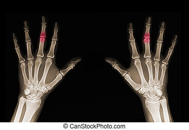 X-ray of hands - X-rays of hands of an adult man with...