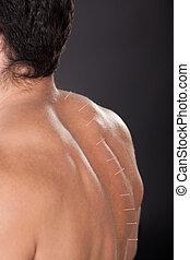 Man With Acupuncture Needles On Back - Close-up Of A...