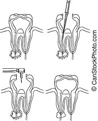 Root canal procedure - Diagram of the root canal procedure