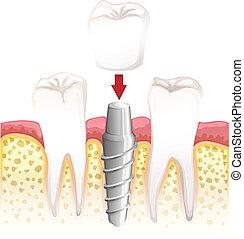 Dental crown procedure - Illustration showing dental crown...