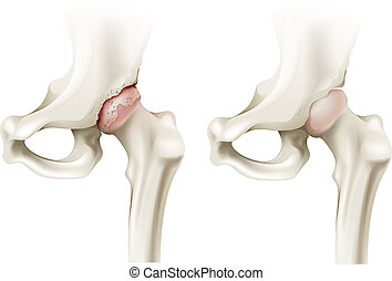 Hip arthritis - Illustration of the hip arthritis on a white...