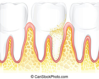 Teeth - Illustration showing the teeth