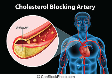 Ateriosclerosis - Illustration showing the process of...