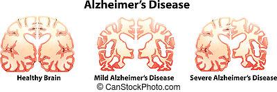 Alzheimer's Disease - Illustration of the alzheimer's...