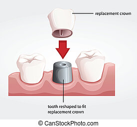 Dental crown procedure - Illustration of a dental crown...