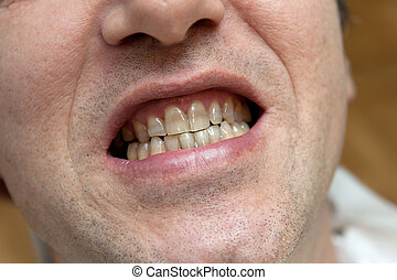 Man with yellow teeth The harm of tobacco concept