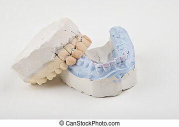 Mold - Dental mold with false teeth on a grey light...