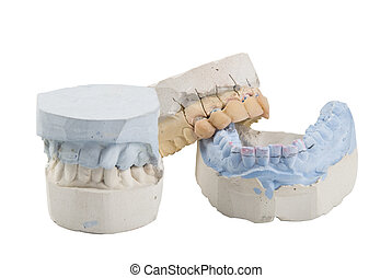 Dental mold - Mold of a full human teeth, small and big mold...