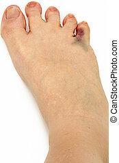 Bruised Broken Toe