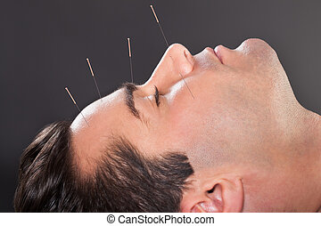 Man Undergoing Acupuncture Treatment - Close-up Of A Young...