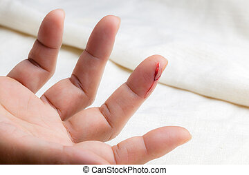 Injured finger with bleeding open cut