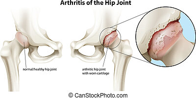 Arthritis of the hip joint - Illustration of the arthritis...