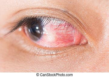 eye exam - Close up of eye examination, nodular...
