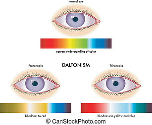 daltonism - medical illustration of the symptoms of...