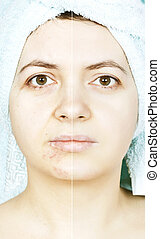 Woman with spotty skin with cicatrices and wrinkles and...