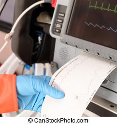 cardíaco, monitor, impresión, EKG, resultados,...