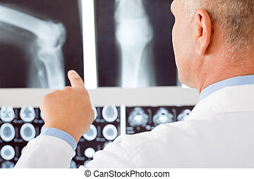 Mature doctor male point at set x-ray - Professional male...