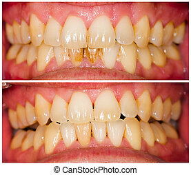 Plaque Removal - Removed plaque on incisors from patient's...