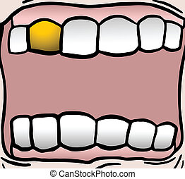 Gold teeth - Creative design of gold teeth