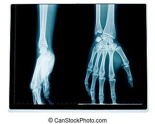 X 光線照相術, 腕, 手