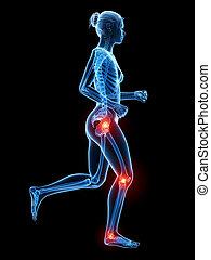 Painful leg joints