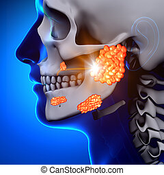 Mumps, /, parótida, Glándula, -, enfermedad