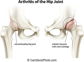 Arthritis of the hip joint - Illustration showing the...