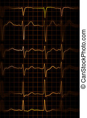 heartbeat - abstract illustration of different heartbeats...